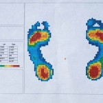 The pressure map of my footprint, key to Aetrex' iStep program for determing a the best footbed for my (your) feet.