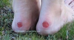 heel-blisters_by-yoshinen_10x